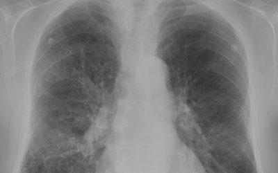 COPD uit basisverzekering vanaf 2019
